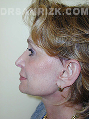 Facelift - After Photo Patient9