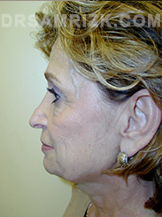 Facelift - Before Photo Patient9
