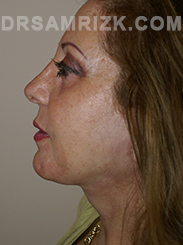 Facelift - After Photo Patient4