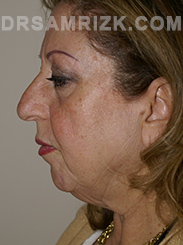 Facelift - Before Photo Patient4
