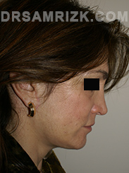 Facelift - After Photo Patient11