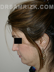 Facelift - Before Photo Patient11