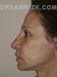 Facelift - After Photo Patient12