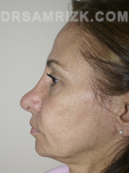 Facelift - Before Photo Patient12