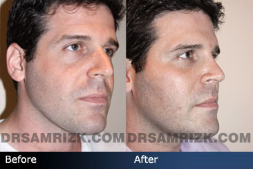 Fat & PRP Injections for Aesthetic Improvement of Facial Features