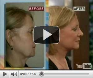 short scar facelift necklift video