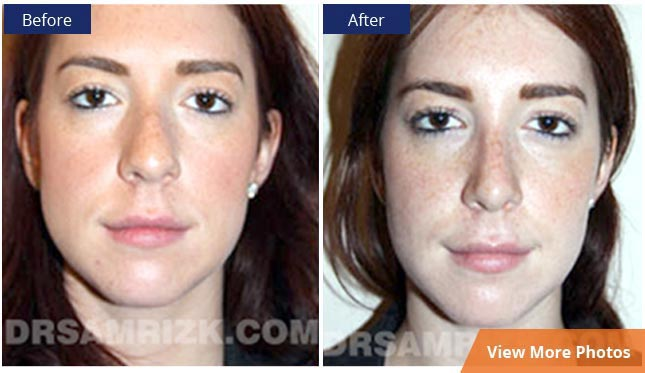 Facial Plastic Surgery NYC before and after photos