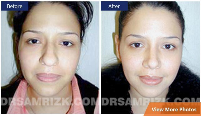 before and after photos Facial Plastic Surgery