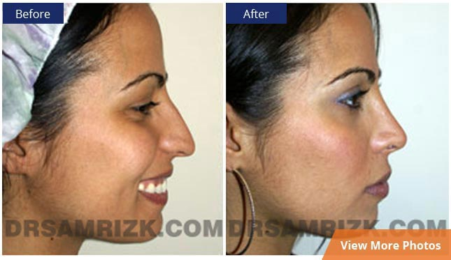 Hispanic Rhinoplasty - before and after images