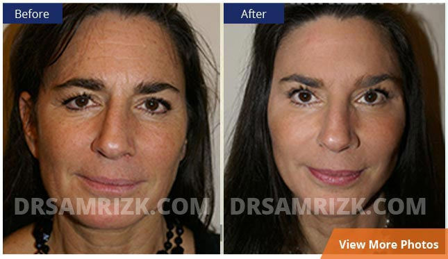 Facelift NYC before and after photos