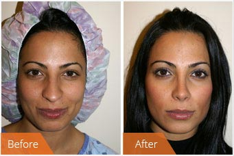 NYC Rhinoplasty - before and after images