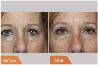 Eyelid Surgery NYC before and after photos