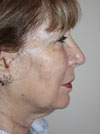 facelift women before and after pictures