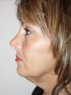facelift before and after images