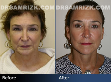 Female facelift before & after - pics