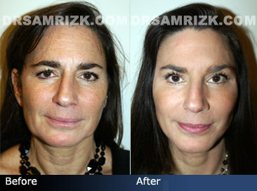 Facial Plastic Surgery before and after images