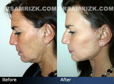 photo Female before and after necklift