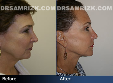 Female facelift before & after - side photos
