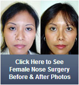 female nose surgery before and after photos
