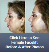 female facelift before and after photo icon