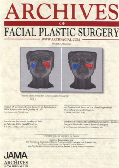Tissue Glue in Deep Plane Facelifts (Original Article)