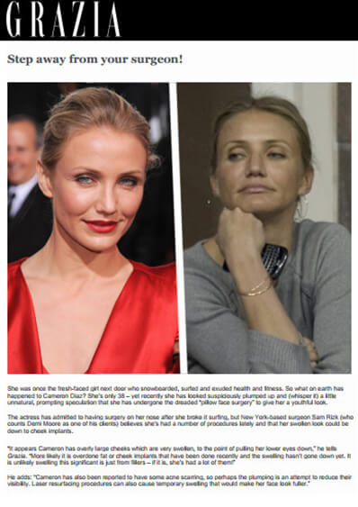 Celebrity Plastic Surgery and Cameron Diaz