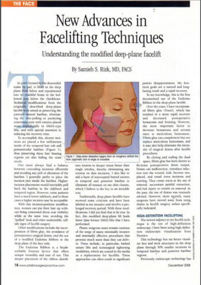 Latest Advances in Facelift/Necklift Surgery in Plastic Surgery Practice Magazine (Dec'08)