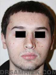 image Male before Nose Surgery