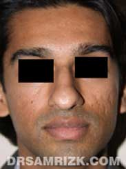 picture Male before Nose Job