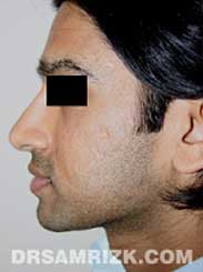 NYC Rhinoplasty Male after pic