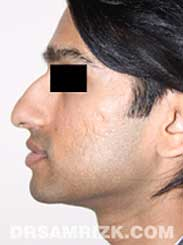 NYC Rhinoplasty Male before pic