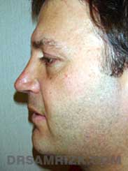 male after nose job - side view