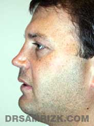 male before nose surgery - side view