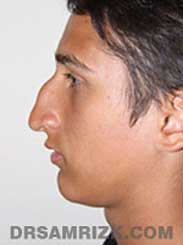 patient before septorhinoplasty - side view