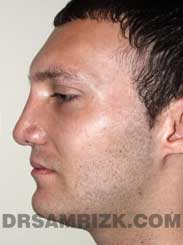 Male patient Post-Op rhinoplasty - side view