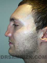 Male patient Pre-Op rhinoplasty - side view