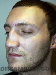 Male patient before rhinoplasty - pic