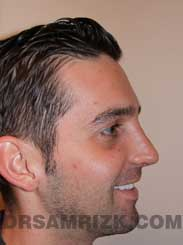 Male patient Post-Op rhinoplasty - photo
