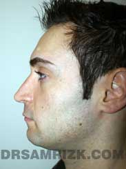 Male patient Post-Op rhinoplasty - pic