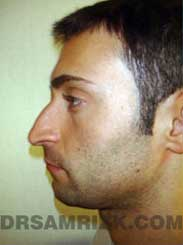 Male patient rhinoplasty Preoperative pic