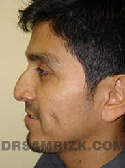 pic Male Pre-Op Nose Surgery