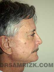 picture Male Postoperative Nose Surgery
