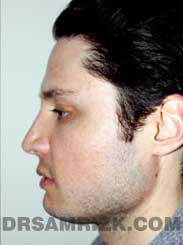 Male after rhinoplasty - photo