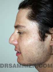 Male before Rhinoplasty