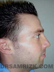 Male patient Postoperative rhinoplasty - side view