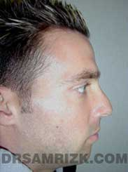 Male patient Preoperative rhinoplasty - side view
