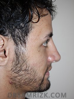 male after nose job - side pic