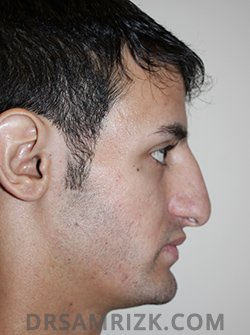 male before nose job - side pic