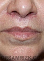 photo Female after Lip Enhancement