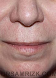 photo Female before Lip Enhancement
